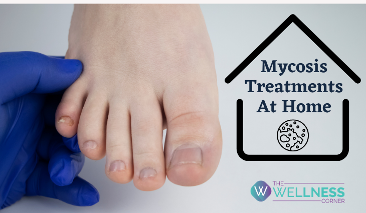 Natural Treatments for Fungal Infections (Mycosis) at Home
